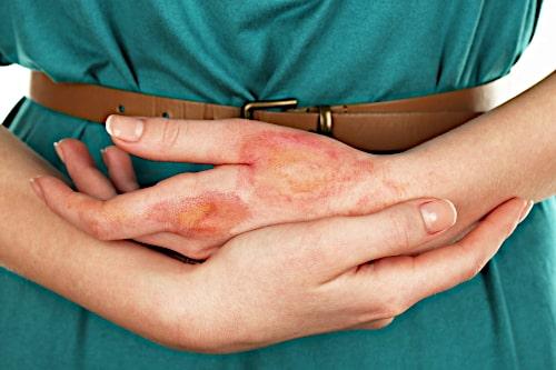 Chirurgiczne leczenie oparzeń w Centrum Dermatologicznym FEBUMED