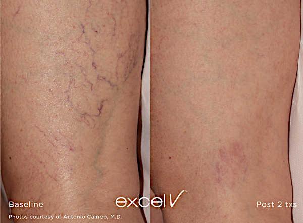 Usuwanie zmian naczyniowych Laserem Cutera Excel V - naczyniaki na twarzy