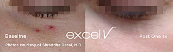 Usuwanie zmian naczyniowych Laserem Cutera Excel V - naczyniaki pod okiem