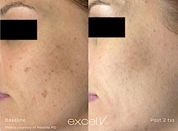 Usuwanie przebarwień Laserem Cutera Excel V - zmiany na twarzy