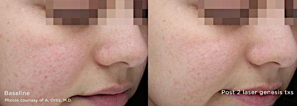 Usuwanie przebarwień Laserem Cutera Excel V - zmiany na skórze twarzy