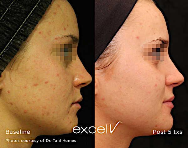 Leczenie trądziku Laserem Cutera Excel V - zmiany trądzikowe na skórze twarzy