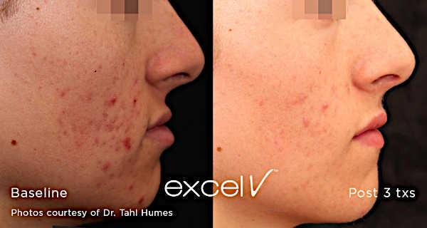Leczenie trądziku Laserem Cutera Excel V - redukcja stanów zapalnych skóry twarzy