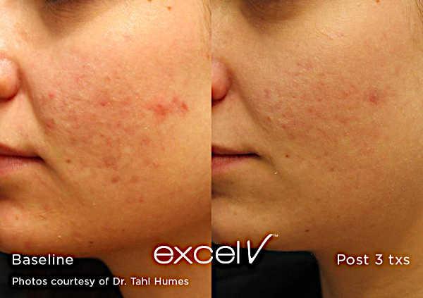Leczenie trądziku Laserem Cutera Excel V - usuwanie wykwitów trądzikowych na twarzy