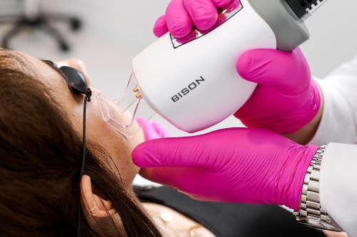 Zabiegi laserowe - laser frakcyjny CO2 oraz laser Cutera Excel V - odmładzanie twarzy