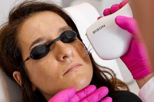 Zabiegi laserowe - laser frakcyjny CO2 oraz laser Cutera Excel V - resurfacing skóry