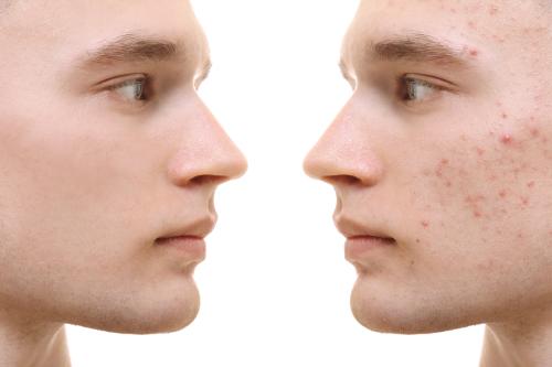Trądzik jest dokuczliwym, przewlekłym schorzeniem dermatologicznym, które dotyczy nie tylko nastolatków, ale także osób dorosłych, powyżej 20 roku życia.