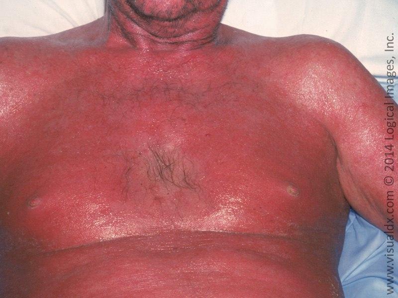 Pacjent nr 1 - przykład erytrodemii łuszczycowej na klatce piersiowej