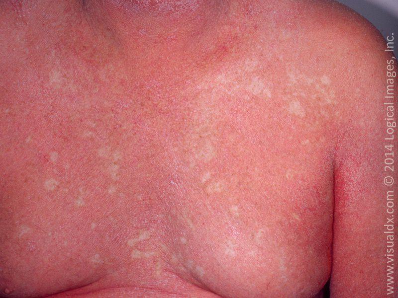 Pacjent nr 2 - przykład erytrodemii łuszczycowej na klatce piersiowej