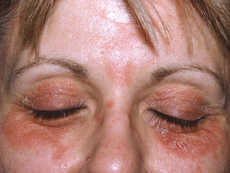 Pacjent nr 1 - łuszczyca skóry twarzy i brwi
