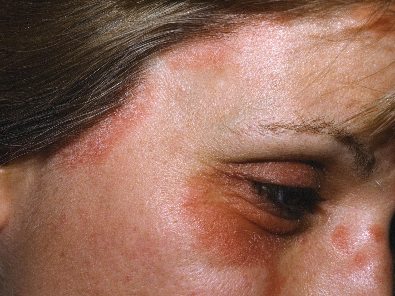 Pacjent nr 2 - łuszczyca skóry twarzy i brwi