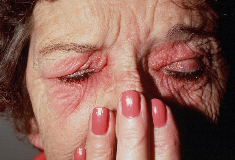 Pacjent nr 3 - łuszczyca skóry twarzy i brwi