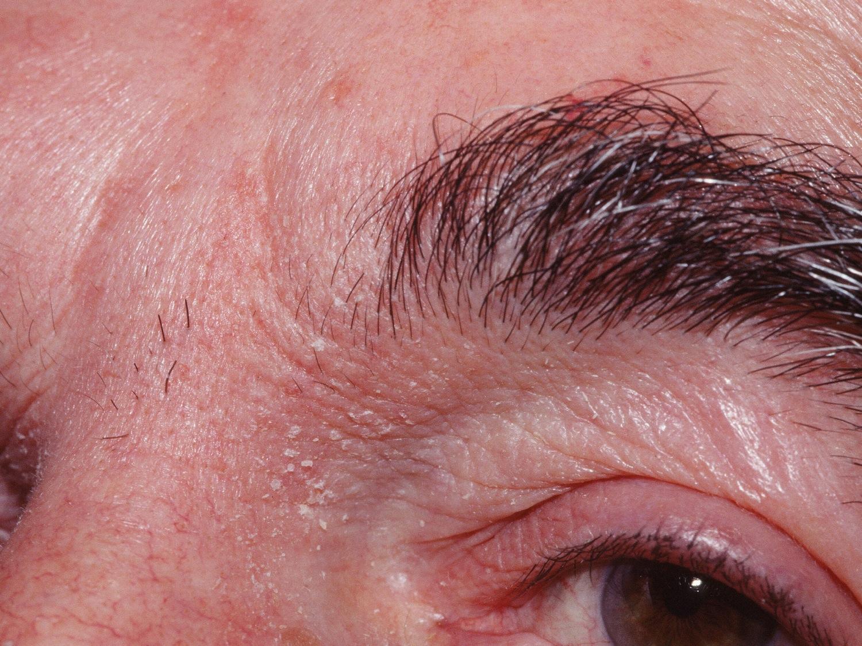Pacjent nr 5 - łuszczyca skóry twarzy i brwi