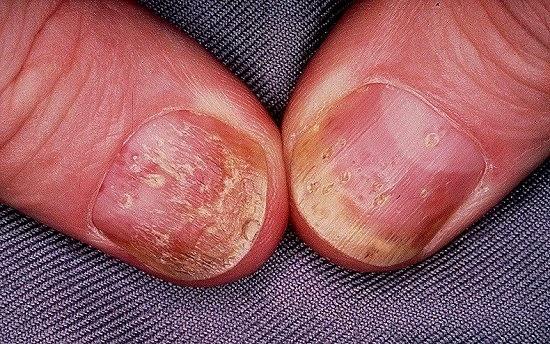 Pacjent nr 2 - łuszczyca paznokci