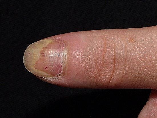 Pacjent nr 3 - łuszczyca paznokci