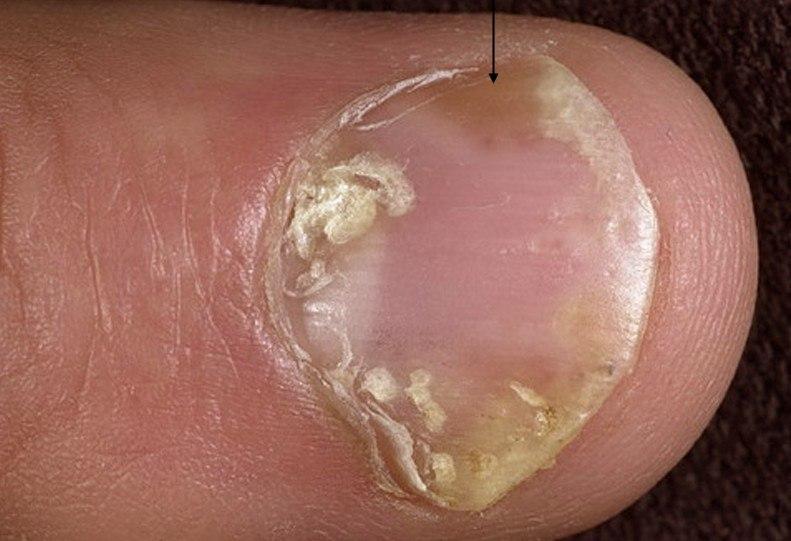 Pacjent nr 5 - łuszczyca paznokci