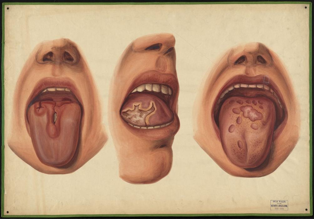 Choroby weneryczne - zdjęcie 1