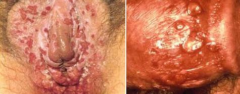 Choroby weneryczne - zdjęcie nr 2