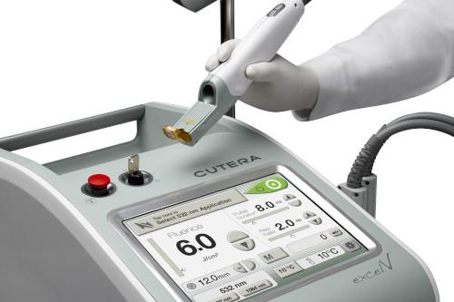 Usuwanie przebarwień laserem Cutera Excel V - widok urządzenia