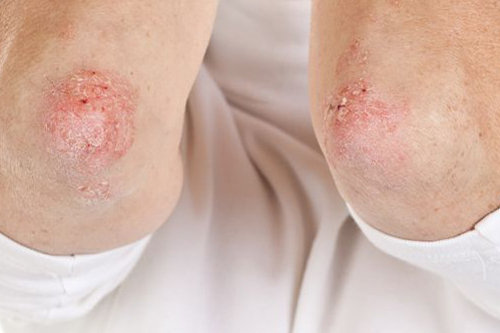 Łuszczyca kropelkowata – przyczyny, leczenie i zdjęcia
