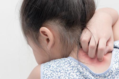 Leczenie łuszczycy u dzieci i niemowląt