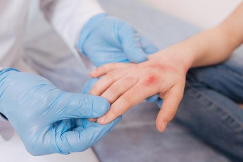 Alternatywne metody leczenia łuszczycy
