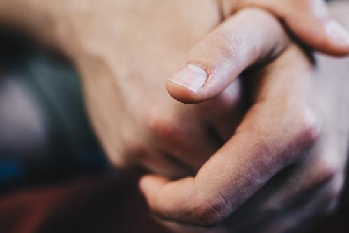 Jak leczyć pękającą skórę na dłoniach?