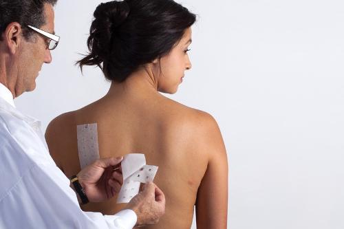 Testy płatkowe nakładane przez lekarza dermatologa w szybki, bezbolesny sposób.